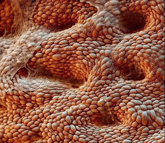 Image 6_stomach mucosal